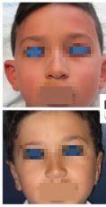 Otoplastie (Chirurgie esthétique des oreilles) - Cliché avant - Dr Romain Viard