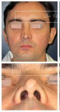 Dr Romain Viard - Rhinoplastie secondaire (patient opéré à l