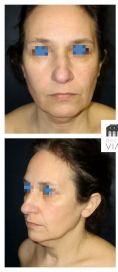 Lifting du cou - Patiente de 55 ans souhaitant un Mini Lifting cervico facial Résultat à 15 jours. La désocialisation est bien moindre qu'un lifting complet.