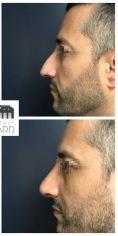 Dr Romain Viard - Rhinoplastie réparatrice chez un homme se plaignant d'une déviation du nez et d'une bosse. A noter que la pointe a été traitée dans le même temps pour harmoniser le résultat. Résultat à 3 mois.