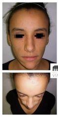 Lipofilling ou autogreffe de tissu graisseux - Lipostructure isolée d'une patiente amaigrie. Amélioration de la texture cutanée en plus de l'amélioration globale des volumes du visage et notamment des pommettes.