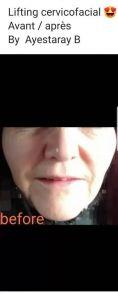 Mini lifting (lifting cervico-facial) - Cliché avant - Dr. Benoit Ayestaray M.D., M.S.