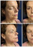 Radiesse - Patiente de 64 ans gênée par ses bajoues et ne souhaitant pas de chirurgie.  L'indication idéale aurait été un lifting cervico facial.  L'injection de 2 seringues de Radiesse au fauteuil par le Dr Romain VIARD permet de redessiner l'ovale du visage de façon surprenante chez cette patiente. Résultat immédiat. La couleur Rouge de la peau est la réaction à la puissante pommade anesthésique et au massage. Le Radiesse a un effet retenseur en plus d'inducteur collagénique. Le Dr Viard pourra l'utiliser aussi pour traiter les fripes jugales ou le cou détendu.