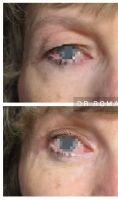 Blépharoplastie inférieure - Cliché avant - Dr Romain Viard