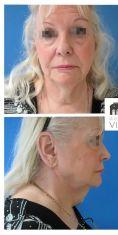 Mini lifting (lifting cervico-facial) - Patiente de 73 ans métamorphosée par un lifting cervico facial, blépharoplastie des 4 paupières et lipostructure faciale. Résultat à 6 mois. Notez la redéfinitition parfaite de son angle cervico mentonnier.