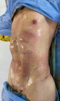 Liposuccion - Cliché avant - Dr. Gherissi Anas
