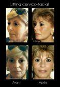 Lifting du visage - Cliché avant - Dr Pierre de Taddeo