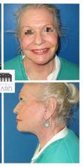 Lifting du visage - Patiente de 73 ans métamorphosée par un lifting cervico facial, blépharoplastie des 4 paupières et lipostructure faciale. Résultat à 6 mois. Notez la redéfinitition parfaite de son angle cervico mentonnier.