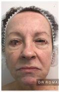 Blépharoplastie inférieure - Blépharoplastie inférieure chez une patiente de 62 ans marquée par le tabagisme. Même si le flash de la photo postopératoire améliore le résultat, on constate un vrai rajeunissement chez cette patiente avec une intervention simple sans hospitalisation sous anesthésie locale approfondie. Résultat à 3 mois.