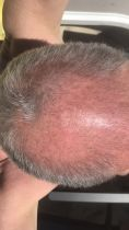 Greffe de cheveux - Greffe de cheveux, FUE avec assistance robotisée par sa fer neograft. Pas de cicatrices, les greffons sont pris un par un et réimplantés un par un.