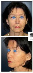 Lifting du cou - Lifting cervico facial avec lipostructure chez une femme de 76 ans. Effet recherché obtenu avec redéfinition de l'ovale du visage et redinamisation des joues.