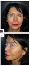 Lipofilling du visage - Lifting cervico facial avec lipostructure chez une femme de 76 ans. Effet recherché obtenu avec redéfinition de l'ovale du visage et redinamisation des joues.