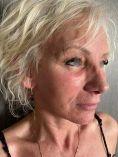 Lifting du visage - Cliché avant - Dr. Gherissi Anas