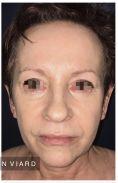 Blépharoplastie - Blépharoplastie inférieure chez une patiente de 62 ans marquée par le tabagisme. Même si le flash de la photo postopératoire améliore le résultat, on constate un vrai rajeunissement chez cette patiente avec une intervention simple sans hospitalisation sous anesthésie locale approfondie. Résultat à 3 mois.
