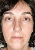 Blépharoplastie inférieure - Pour plus d
