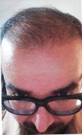 Greffe de cheveux par FUE - Cliché avant - Dr Mohamed Amin Meddeb