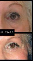 Blépharoplastie - Cliché avant - Dr Romain Viard