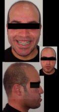 Génioplastie - Chirurgie esthétique du menton - Cliché avant - Prof Abdeslam Benajiba