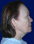 Lifting du visage - Cliché avant - Dr Anne-François Reau