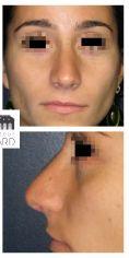 Rhinoplastie - Résultat à 3 mois de face : Affinement de la pointe et du dorsum.