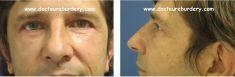 Blépharoplastie - homme de 46 ans blépharoplastie supérieure pour dermatochalasis (excès de peau) blépharoplastie inférieure pour traiter les poches malaires et l