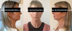 Harold Eburdery - femme de 31 ans lipoaspiration du cou, du rebord mandibulaire et des bajoues