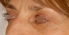Blépharoplastie inférieure - Sujet féminin, 52 ans, 3 mois post-opératoire. Regard rajeuni après la suppression des poches graisseuses inférieures. Résultat naturel, et harmonieux, en adéquation avec le souhait de la patiente.
