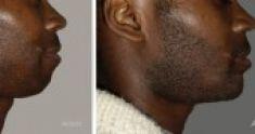 Chirurgie du double-menton - Cliché avant