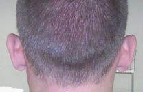 Otoplastie (Chirurgie esthétique des oreilles) - Cliché avant - Dr Christian Berwald