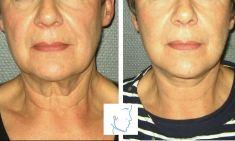 Mini lifting (lifting cervico-facial) - Cliché avant - Dr Nicolas Froget