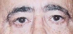 Blépharoplastie - Cliché avant - Dr Eric BONAFOS