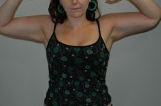 Lifting des bras - Cliché avant - Dr Wim Danau