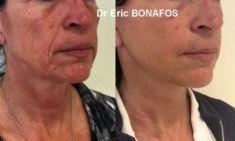 Lifting du visage - Cliché avant - Dr Eric BONAFOS