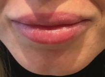 Augmentation des lèvres (acide hyaluronique) - Ourlet et hydratation des lèvres supérieures et inférieures avant et immédiatement après injection d