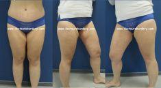 Chirurgie des cuisses - femme de 30 ans, cruroplastie
