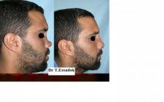 Rhinoplastie - Cliché avant - Dr Tayeb Essadok