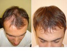 Traitements de la chute des cheveux - Cliché avant - Dr Tayeb Essadok