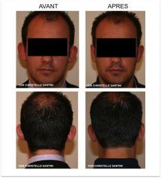 Otoplastie (Chirurgie esthétique des oreilles) - Cliché avant - Dr Christelle Santini
