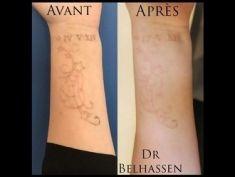 Détatouage - Laser PicoWay. Après 5 séances. La solution complète pour le détatouage. Pourquoi choisir le traitement PicoWay? - Suppression des tatouages, y compris les tatouages polychromes et ceux qui ont déjà été traités avec des lasers traditionnels.