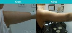 Lifting des bras - Cliché avant - Dr Chedi Bali