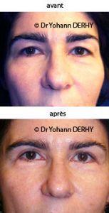 Blépharoplastie - Cliché avant - Dr Yohann Derhy