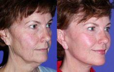Lifting du visage - Convalescence rapide après l'intervention: 7 à 14 jours