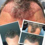 Greffe de cheveux - Cliché avant - Dr AMAT - Micro-greffe cheveux FUE 2.0