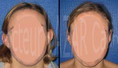 Dr Calin Constantin LAZAR - Correction voie ouverte à cicatrice rétro-auriculaire (adulte)