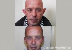 Otoplastie (Chirurgie esthétique des oreilles) - Cliché avant - Dr Robin Mookherjee