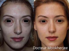 Blépharoplastie - Cliché avant - Dr Robin Mookherjee