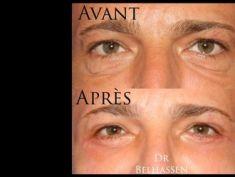 Blépharoplastie - Chirurgie des paupières inférieures. Avec correction de l