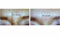 Traitement des rides - Toxine botulique, Dysport - Cliché avant - Dr Adel Louafi