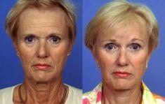 Lifting du visage - Pour un lifting du front, le chirurgien n'effectue que quelques courtes incisions à la lisière du cuir chevelu. Même les muscles sous-cutanés autour des yeux sont corrigés. Le lifting SMAS du cou retend le contour du cou.