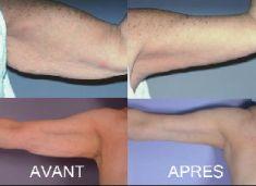 Lifting des bras - Cliché avant - Dr Fabrice Poirier